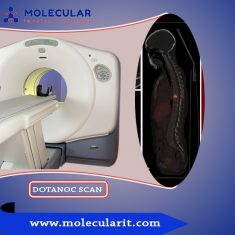 Molecularit – DOTANOC Scan procedure are highly sensitive and specific for detecting gastr ...